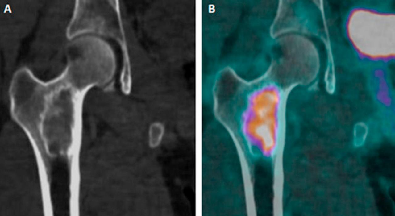 <strong>La dysplasie fibreuse</strong> des os en médecine nucléaire